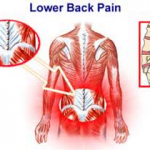LOWER BACK MUSCLE STRAIN  1