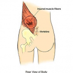 LOWER BACK MUSCLE STRAIN 3