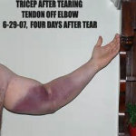 TRICEPS TEAR RECOVERY TIME 3