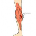 CHRONIC CALF STRAIN TREATMENT 2