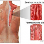 DIFFERENCE BETWEEN A PINCHED NERVE AND MUSCLE STRAIN 5
