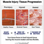 MUSCLE SCAR TISSUE TREATMENT 2