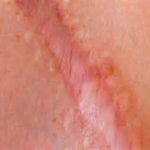 MUSCLE SCAR TISSUE TREATMENT 3