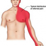 PULLED CHEST MUSCLE SYMPTOMS 5