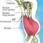 WHAT TO DO FOR A TORN BICEP MUSCLE 2