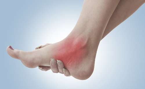 Recognizing A Strained Ankle