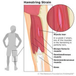 PULLED HAMSTRING IN CHILDREN 1