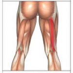 PULLED HAMSTRING IN CHILDREN 4
