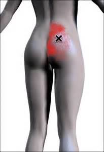 Buttocks muscle strain 1