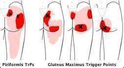Treatment for a gluteus maximus ache 1