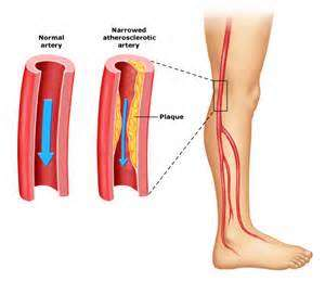 maladies that induce calf muscle pain muscle pull muscle pull